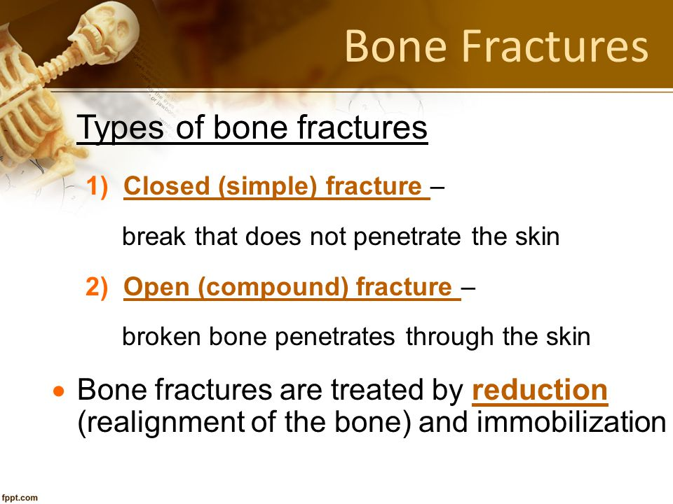 Bone Fractures Types of bone fractures
