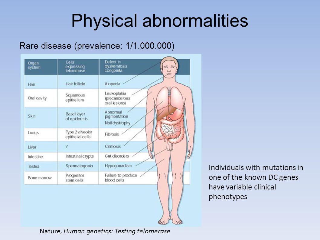 Physical abnormalities