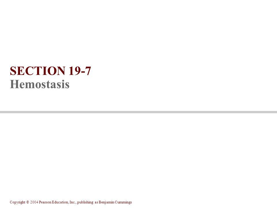 SECTION 19-7 Hemostasis