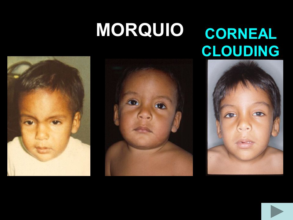 MORQUIO CORNEAL CLOUDING