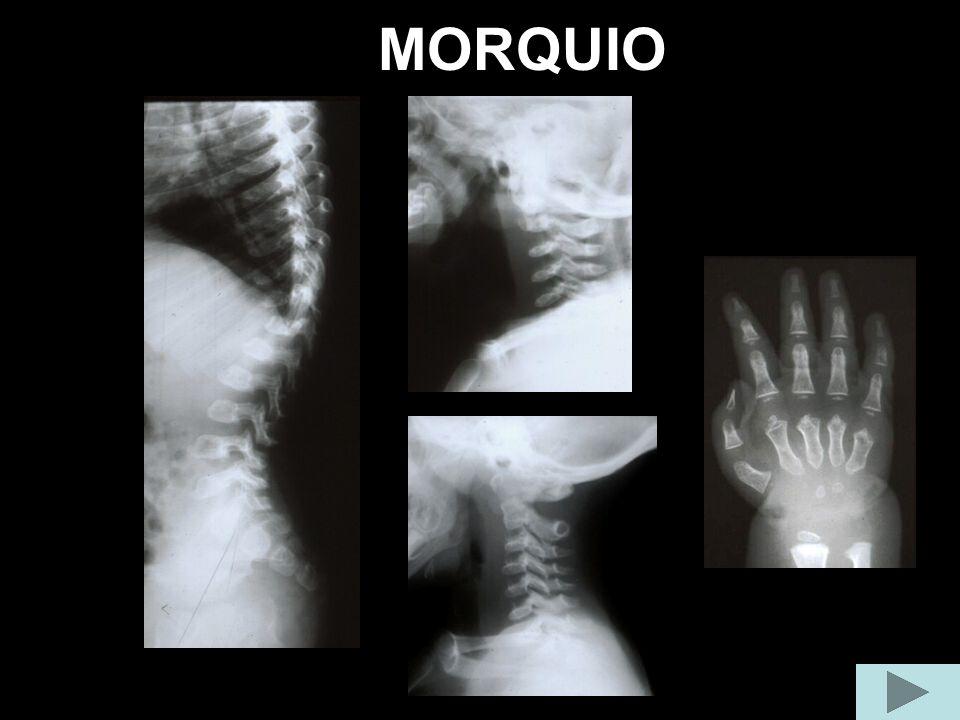 MORQUIO