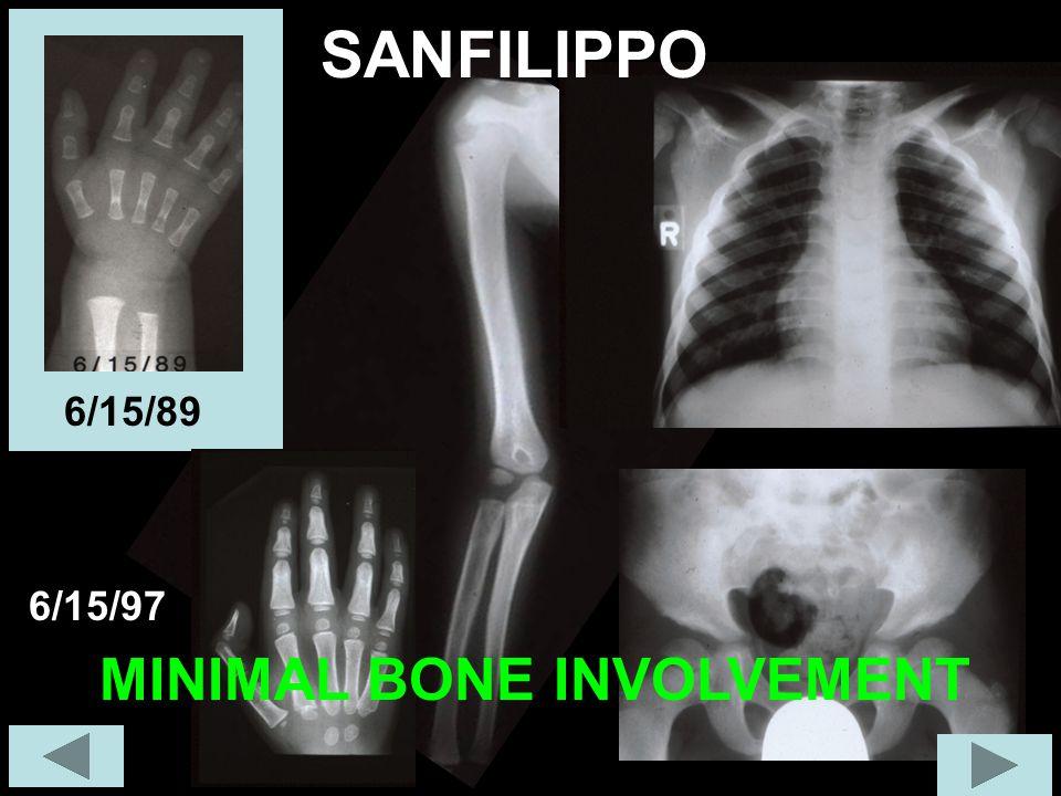 SANFILIPPO 6/15/89 6/15/97 MINIMAL BONE INVOLVEMENT