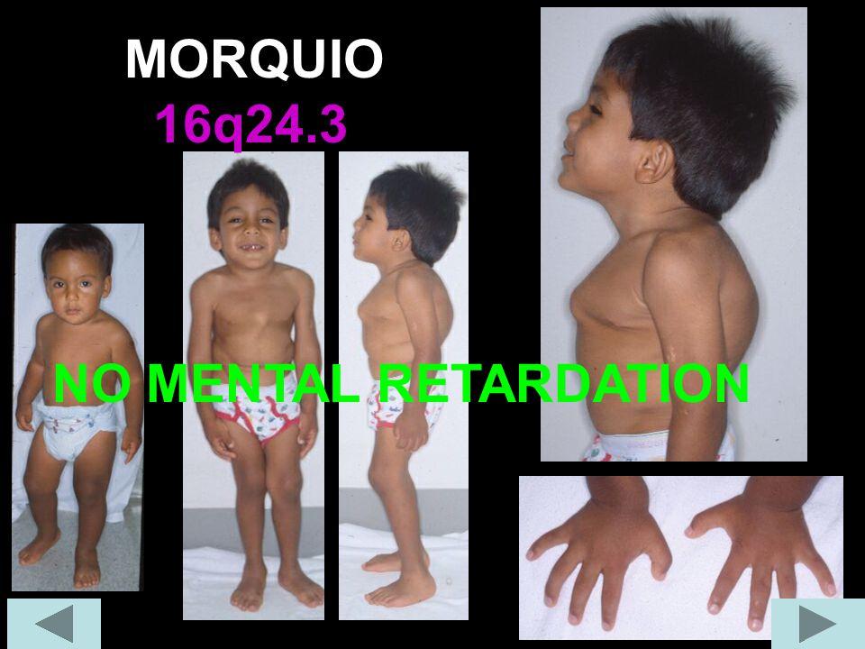 MORQUIO 16q24.3 NO MENTAL RETARDATION