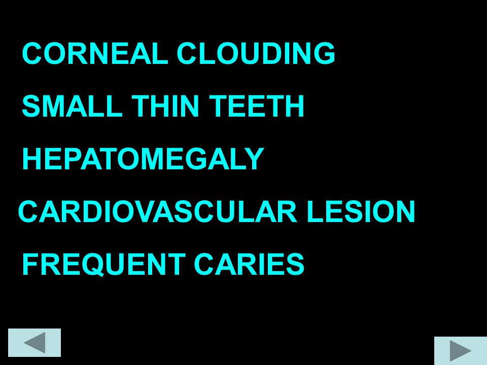 CORNEAL CLOUDING SMALL THIN TEETH HEPATOMEGALY CARDIOVASCULAR LESION FREQUENT CARIES