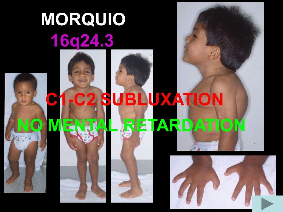MORQUIO 16q24.3 C1-C2 SUBLUXATION NO MENTAL RETARDATION