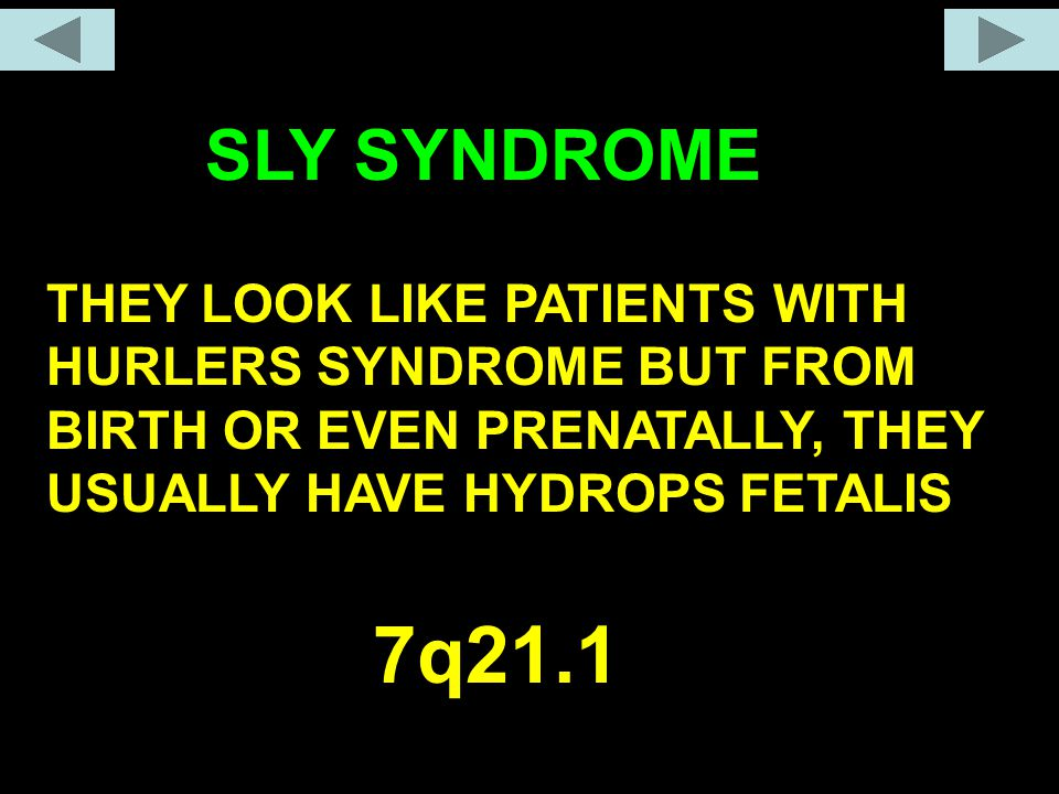 SLY SYNDROME THEY LOOK LIKE PATIENTS WITH HURLERS SYNDROME BUT FROM BIRTH OR EVEN PRENATALLY, THEY USUALLY HAVE HYDROPS FETALIS.