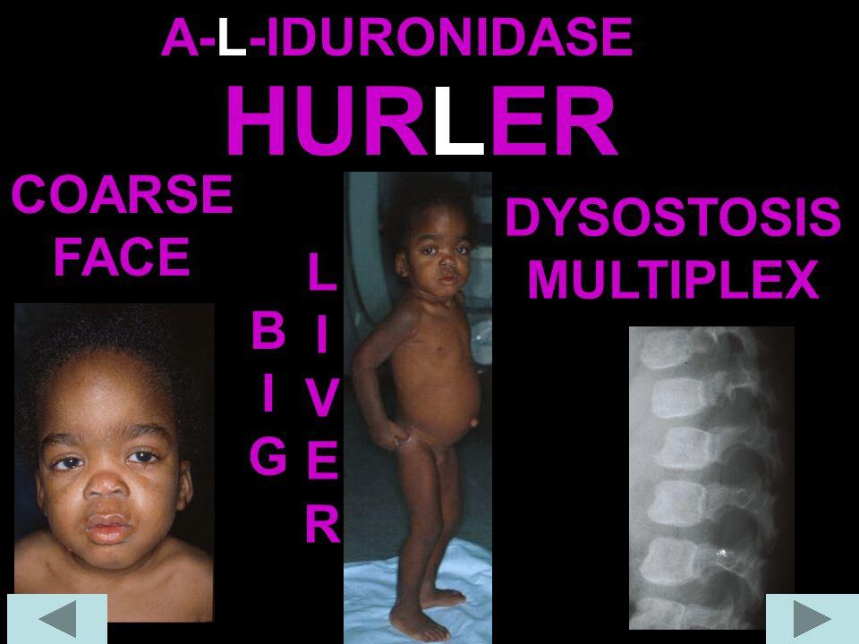 A-L-IDURONIDASE HURLER COARSE FACE DYSOSTOSIS MULTIPLEX LIVER BIG