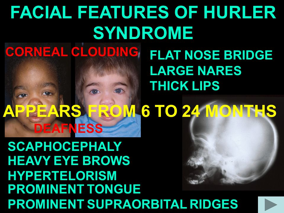 FACIAL FEATURES OF HURLER SYNDROME