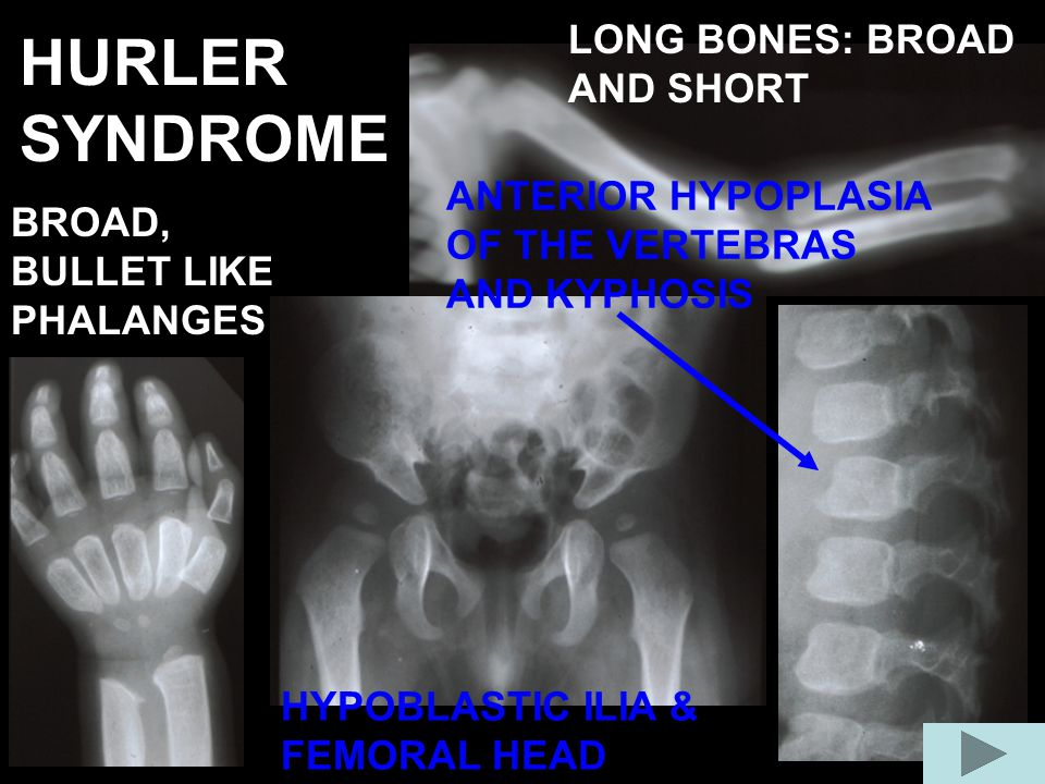 HURLER SYNDROME LONG BONES: BROAD AND SHORT