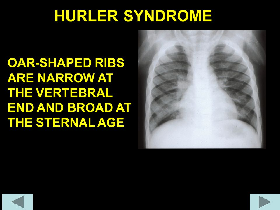 HURLER SYNDROME OAR-SHAPED RIBS ARE NARROW AT THE VERTEBRAL END AND BROAD AT THE STERNAL AGE