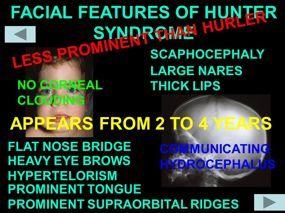 FACIAL FEATURES OF HUNTER SYNDROME
