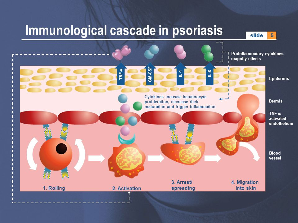 Immunological cascade in psoriasis