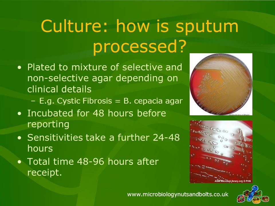 Culture: how is sputum processed