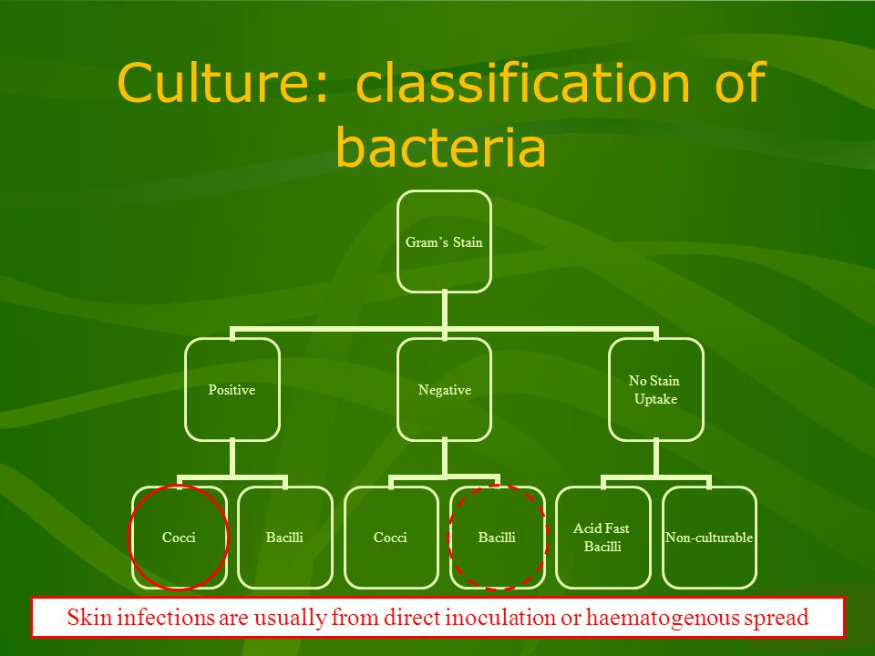 Culture: classification of bacteria