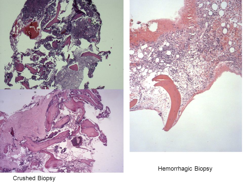 Hemorrhagic Biopsy Crushed Biopsy