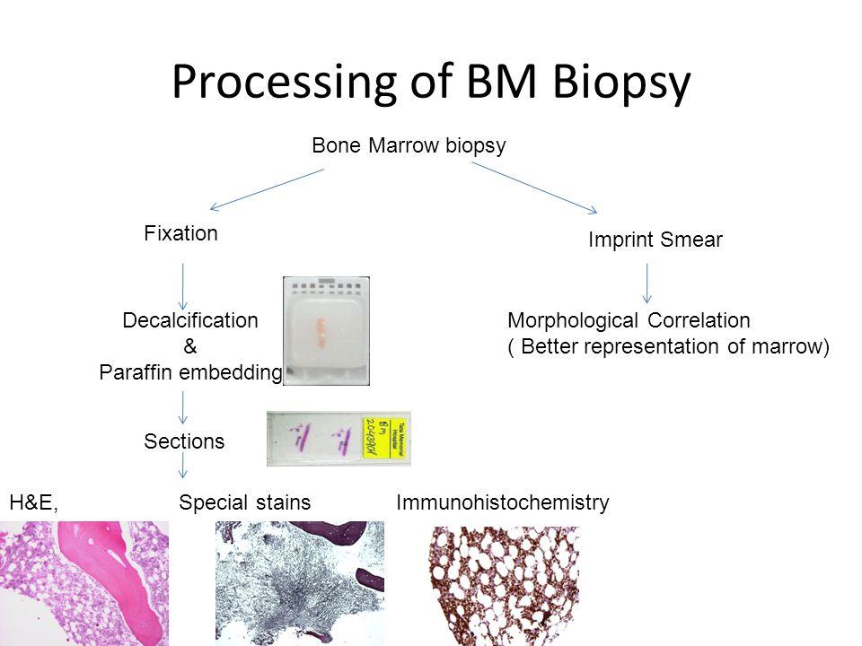 Processing of BM Biopsy