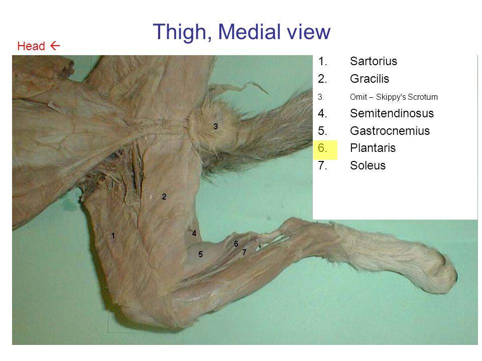 Thigh, Medial view Head  Sartorius Gracilis Semitendinosus
