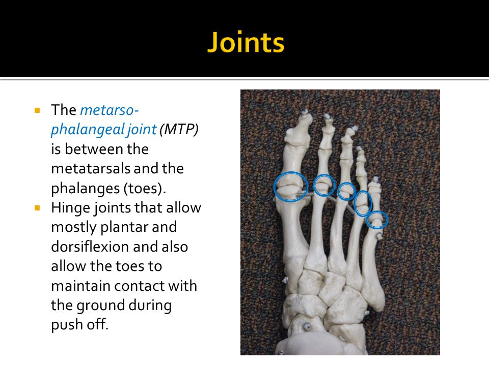 Joints The metarso-phalangeal joint (MTP) is between the metatarsals and the phalanges (toes).