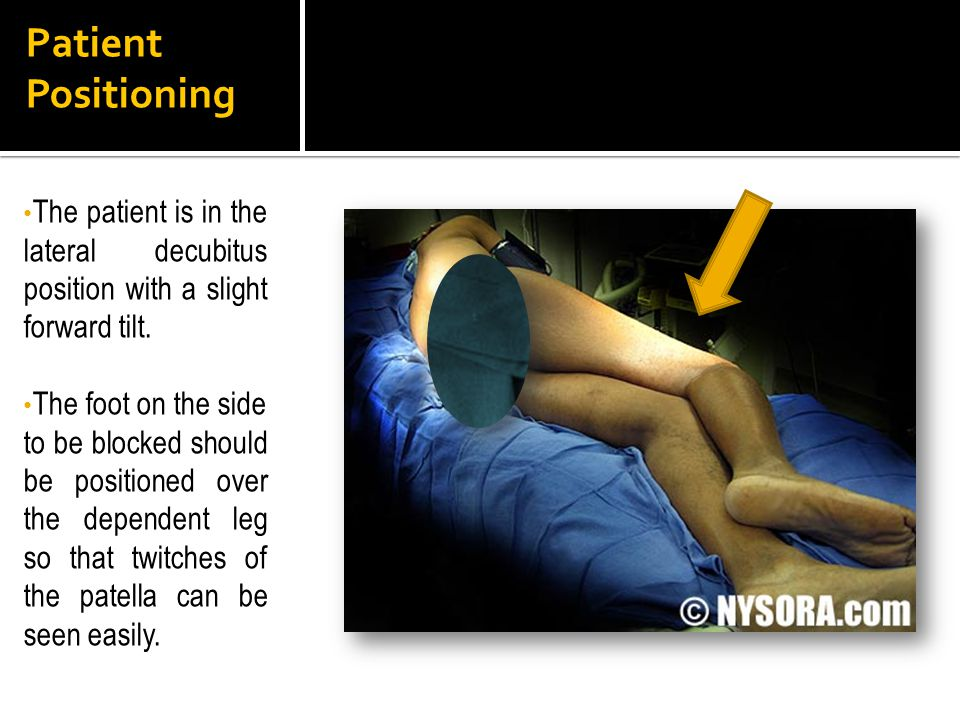Patient Positioning The patient is in the lateral decubitus position with a slight forward tilt.