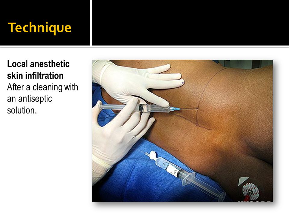 Technique Local anesthetic skin infiltration