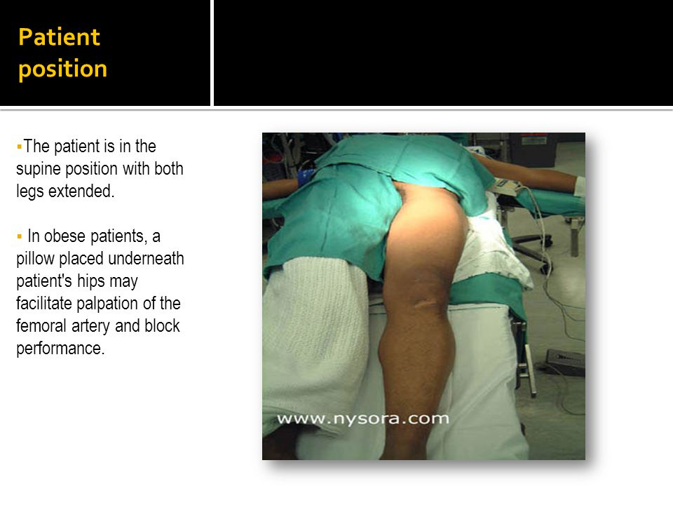 Patient position The patient is in the supine position with both legs extended.