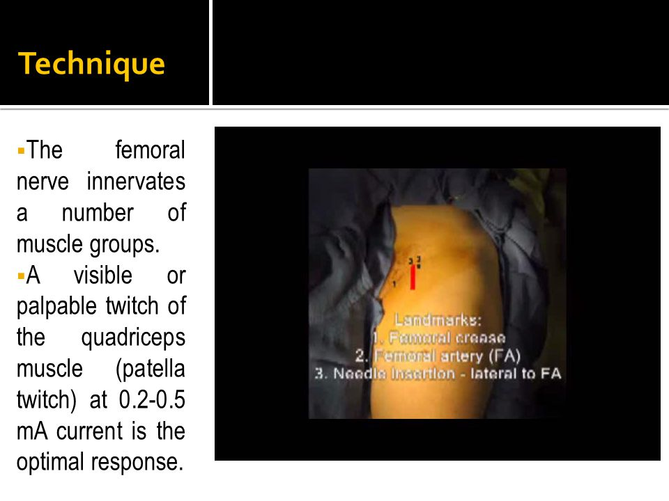 Technique The femoral nerve innervates a number of muscle groups.