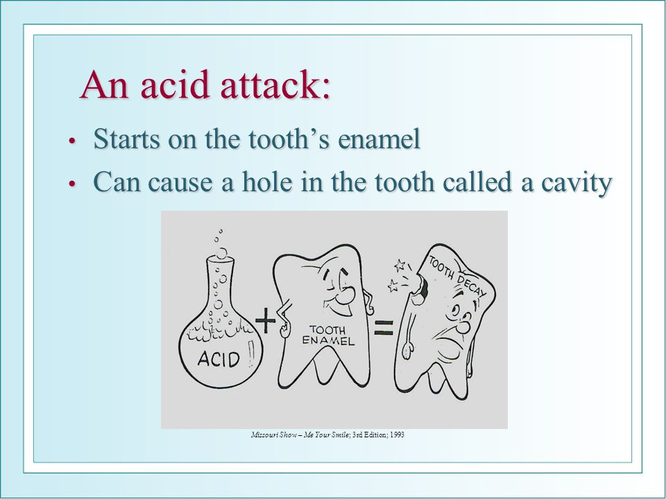 An acid attack: Starts on the tooth's enamel