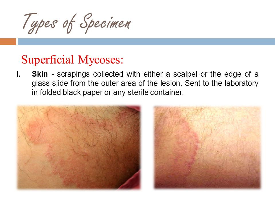 Types of Specimen Superficial Mycoses: