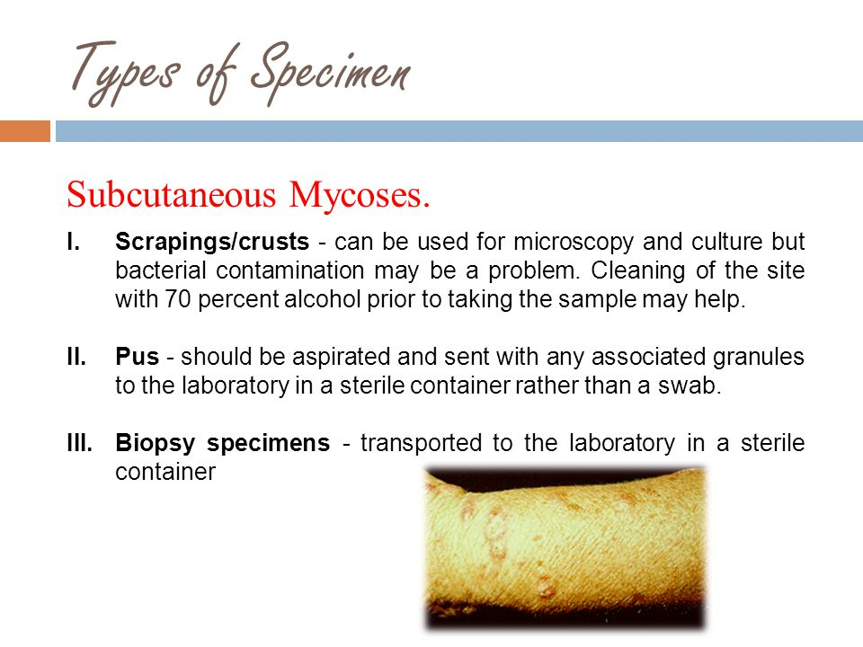 Types of Specimen Subcutaneous Mycoses.