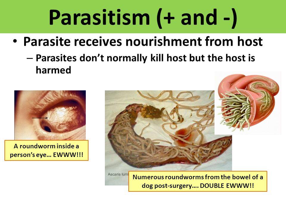 A roundworm inside a person's eye… EWWW!!!