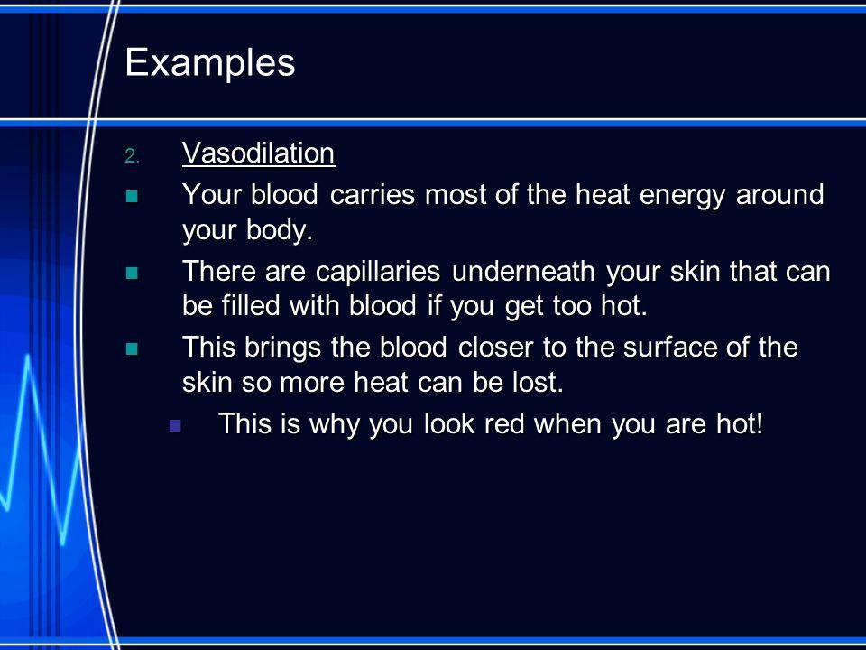 Examples Vasodilation