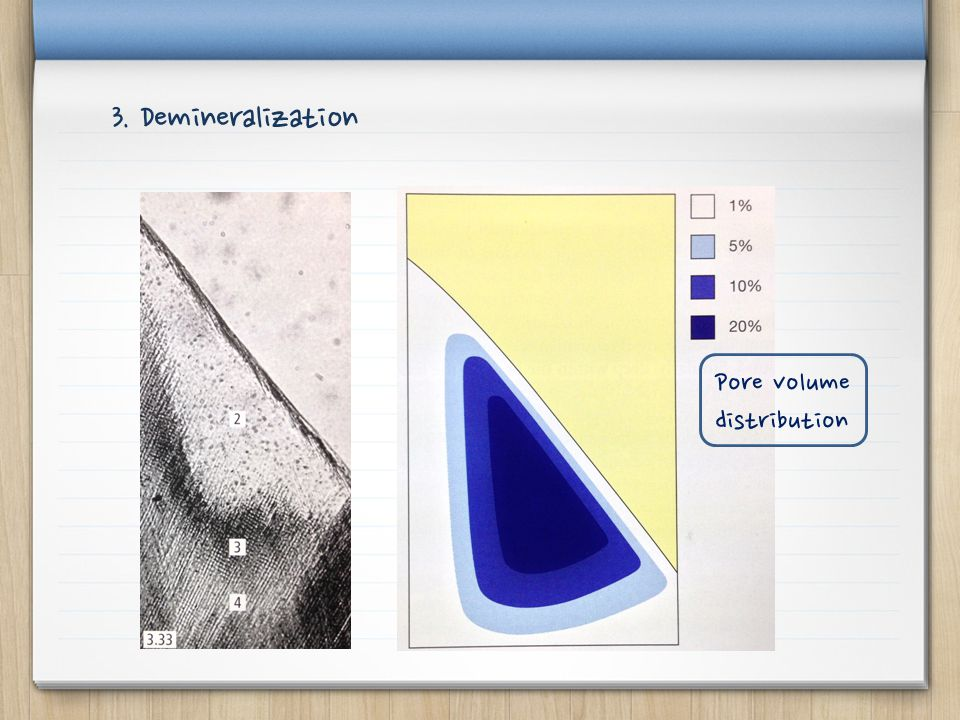 3. Demineralization Pore volume distribution