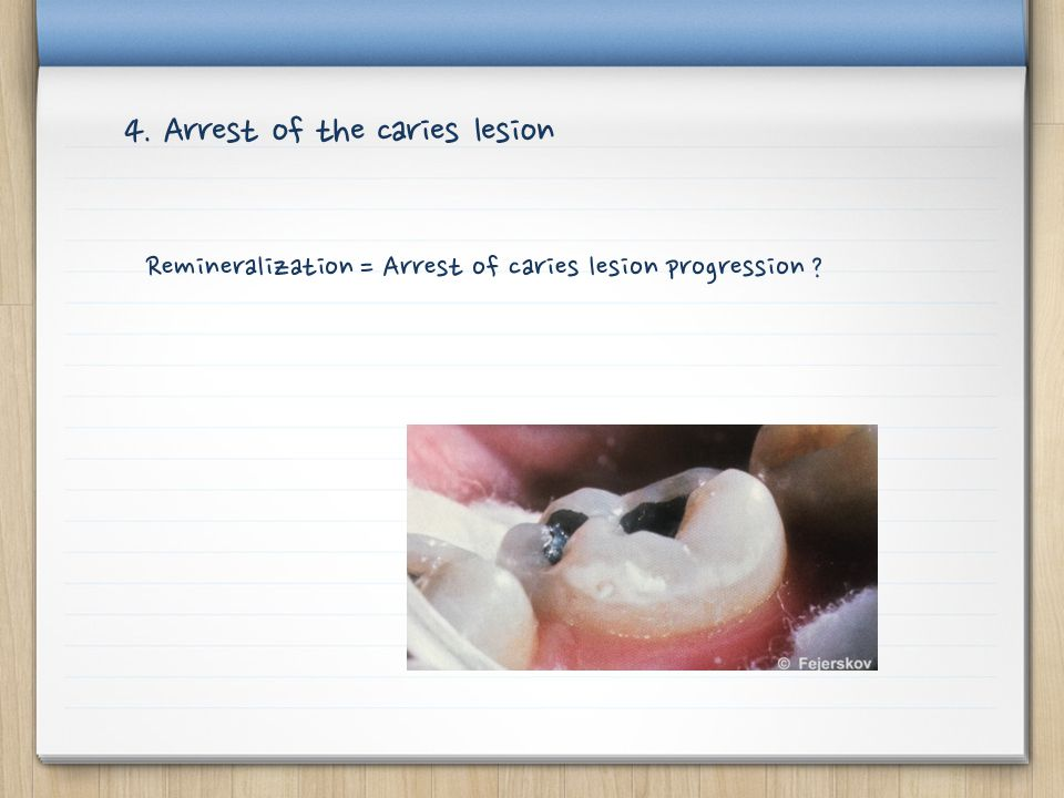 4. Arrest of the caries lesion