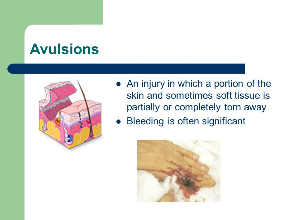Avulsions An injury in which a portion of the skin and sometimes soft tissue is partially or completely torn away.