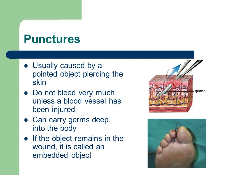 Punctures Usually caused by a pointed object piercing the skin