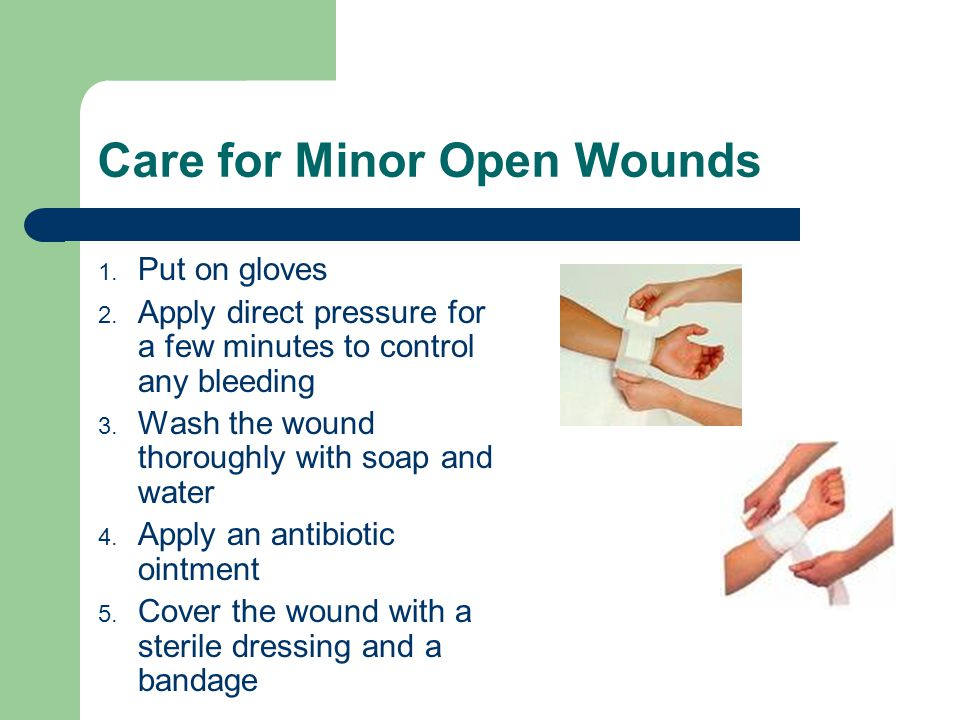 Care for Minor Open Wounds