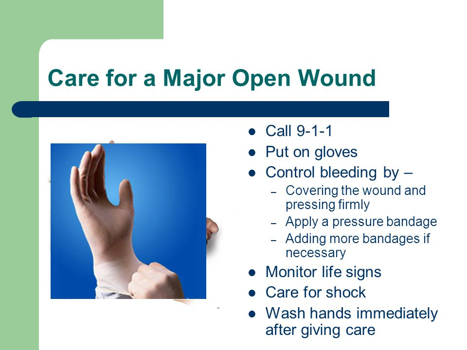 Care for a Major Open Wound