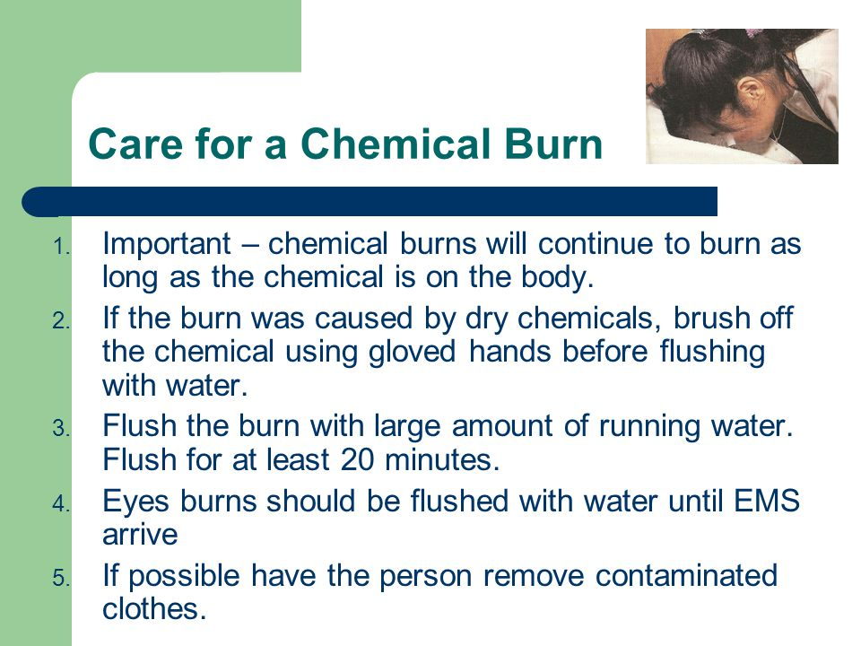 Care for a Chemical Burn