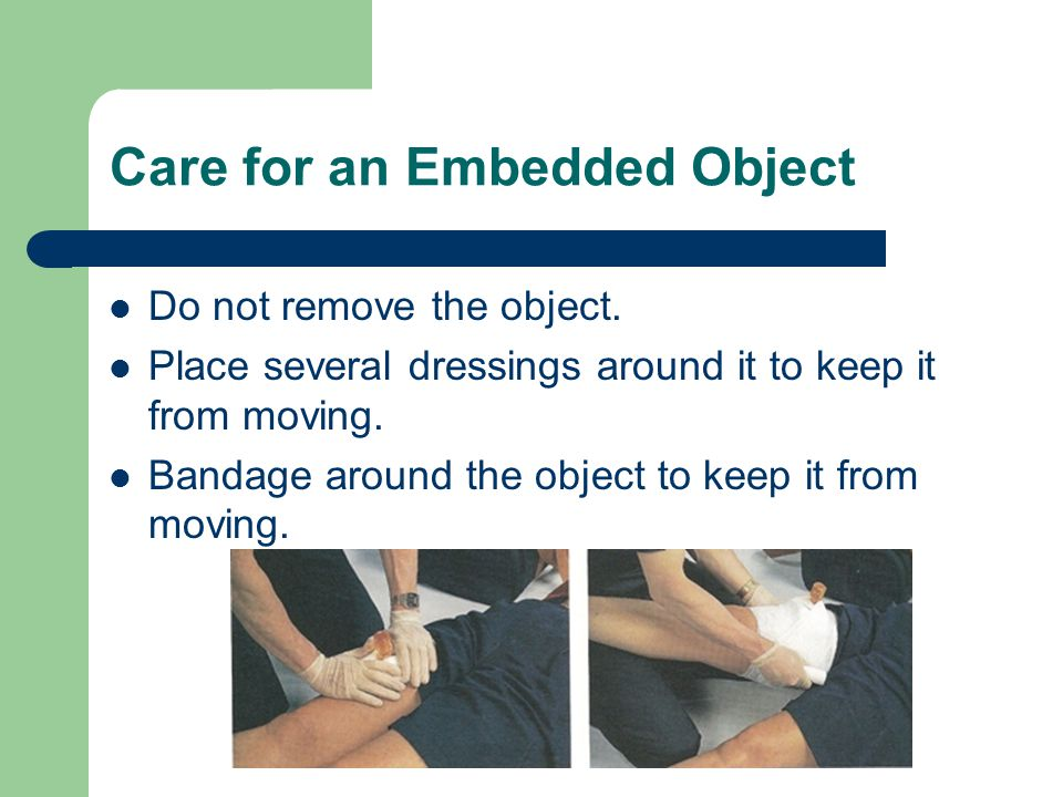 Care for an Embedded Object