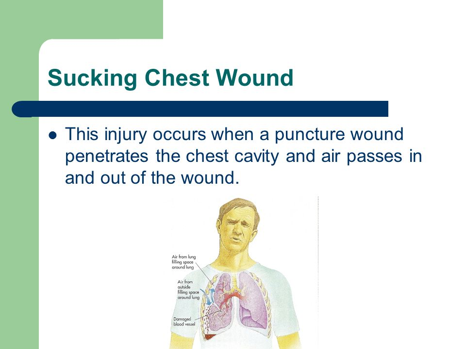Sucking Chest Wound This injury occurs when a puncture wound penetrates the chest cavity and air passes in and out of the wound.