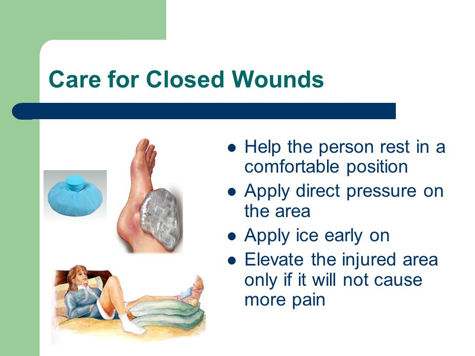 Care for Closed Wounds Help the person rest in a comfortable position