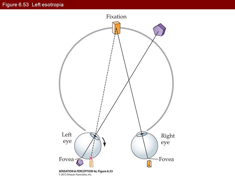 Figure 6.53 Left esotropia SensationPerception4e-Fig-06-53-0.jpg
