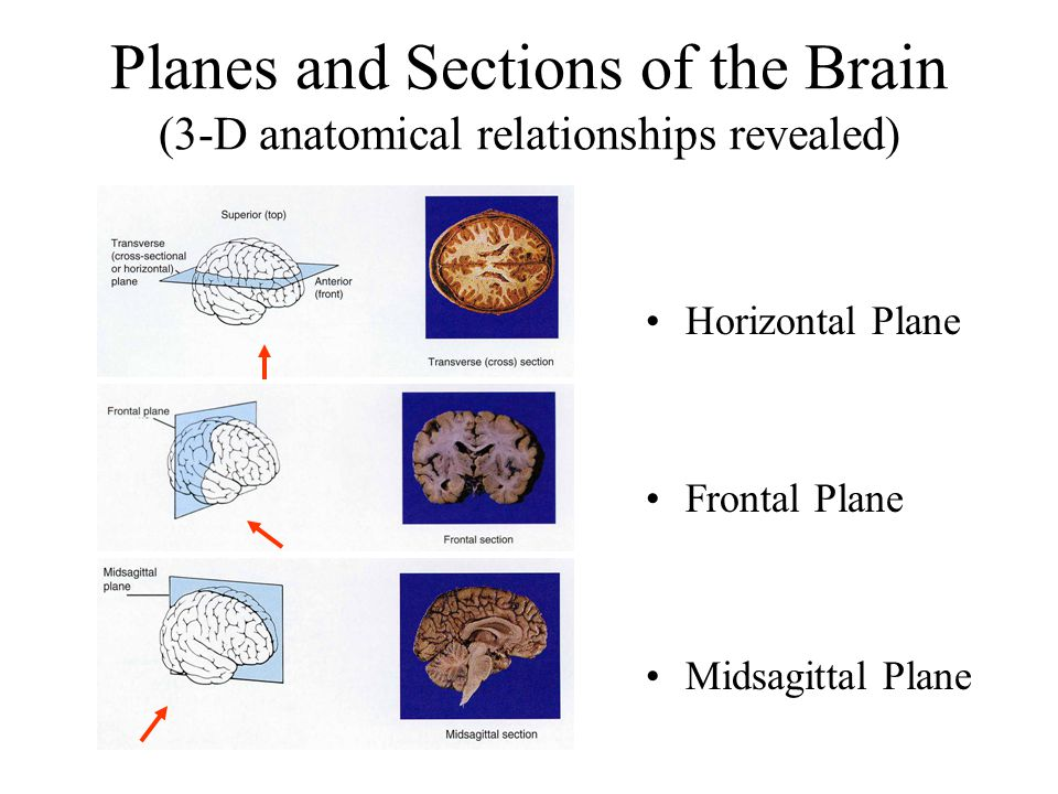 Planes and Sections of the Brain (3-D anatomical relationships revealed)