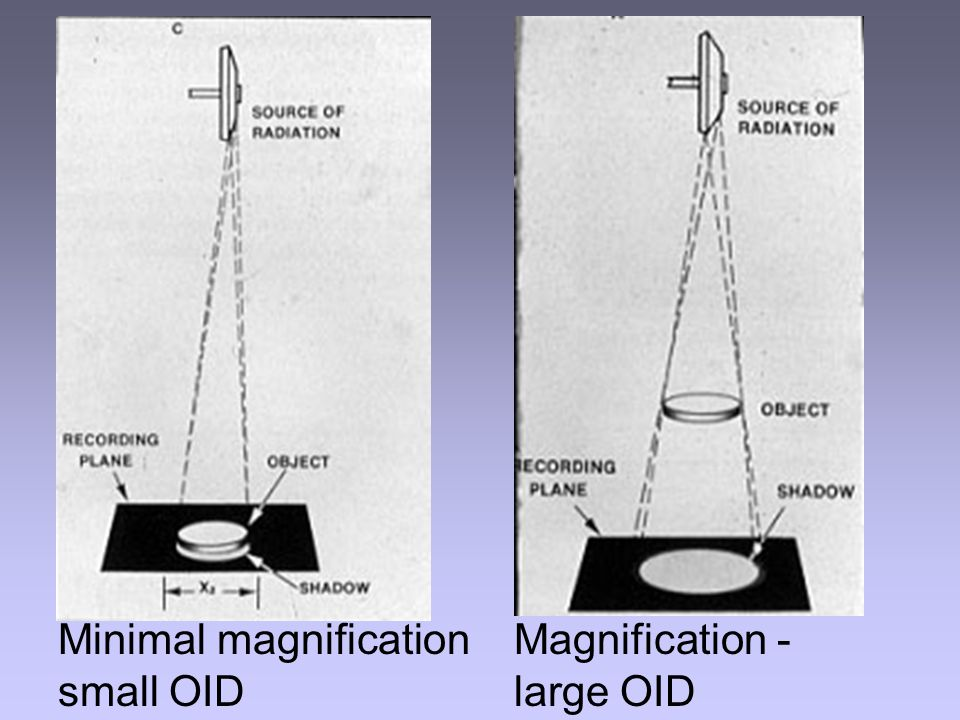 Minimal magnification small OID