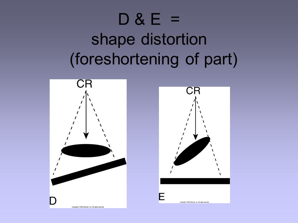 D & E = shape distortion (foreshortening of part)