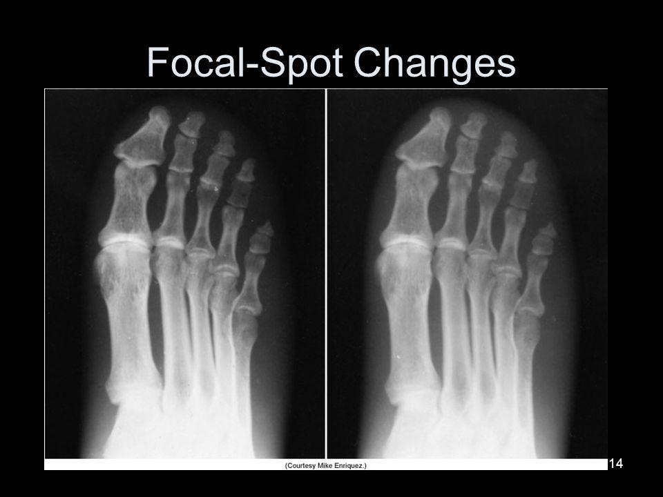 Focal-Spot Changes
