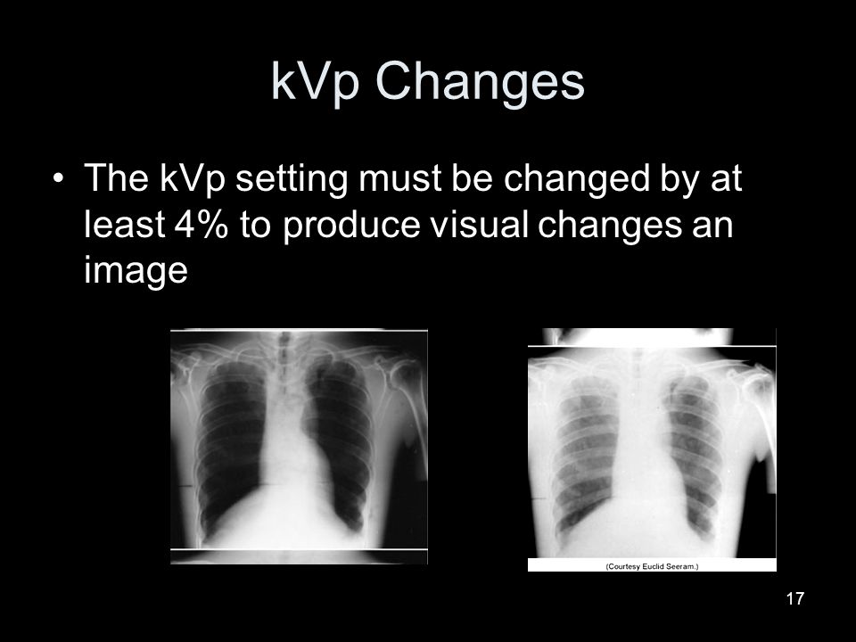 kVp Changes The kVp setting must be changed by at least 4% to produce visual changes an image