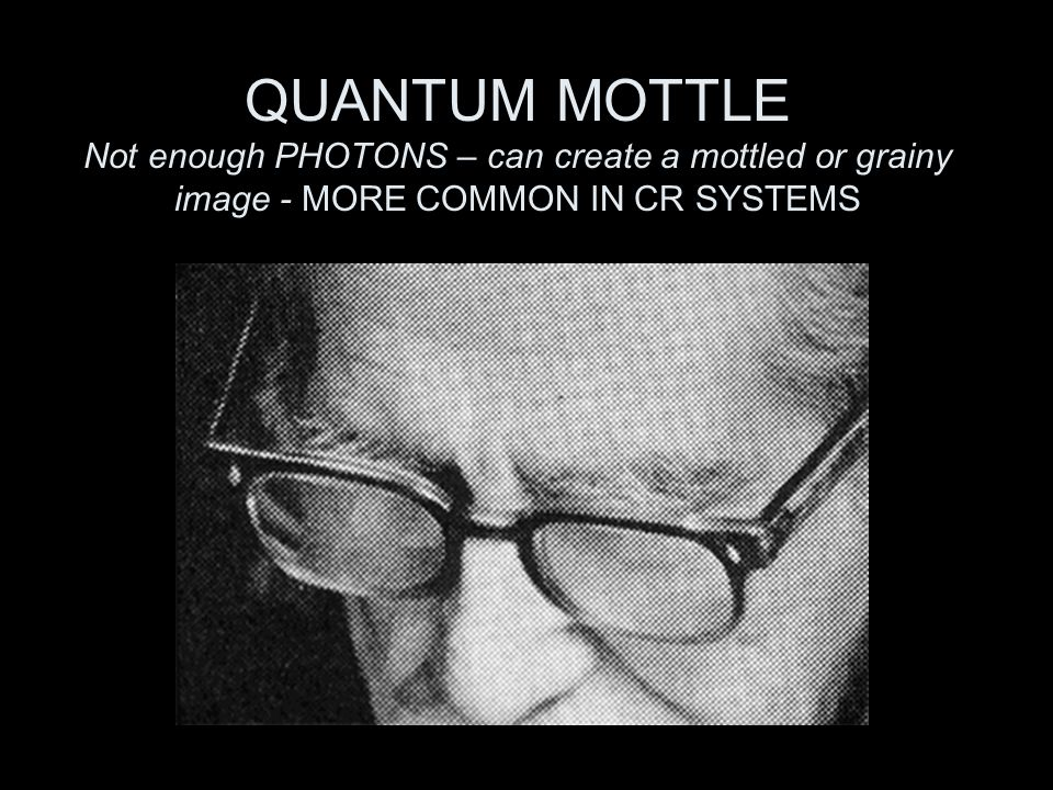QUANTUM MOTTLE Not enough PHOTONS – can create a mottled or grainy image - MORE COMMON IN CR SYSTEMS