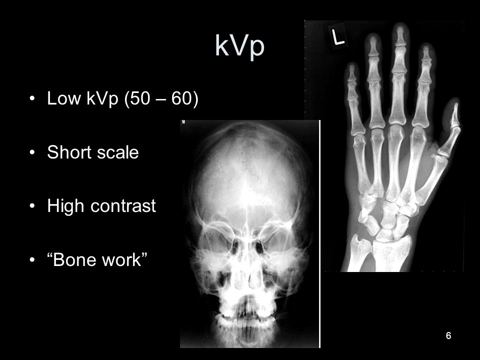 kVp Low kVp (50 – 60) Short scale High contrast Bone work