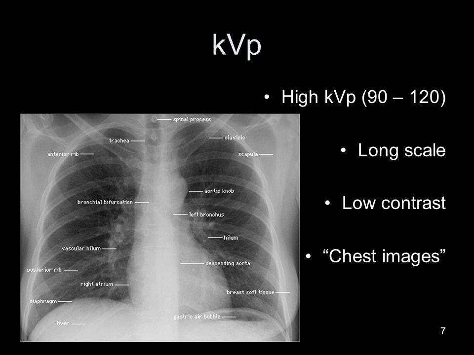 kVp High kVp (90 – 120) Long scale Low contrast Chest images